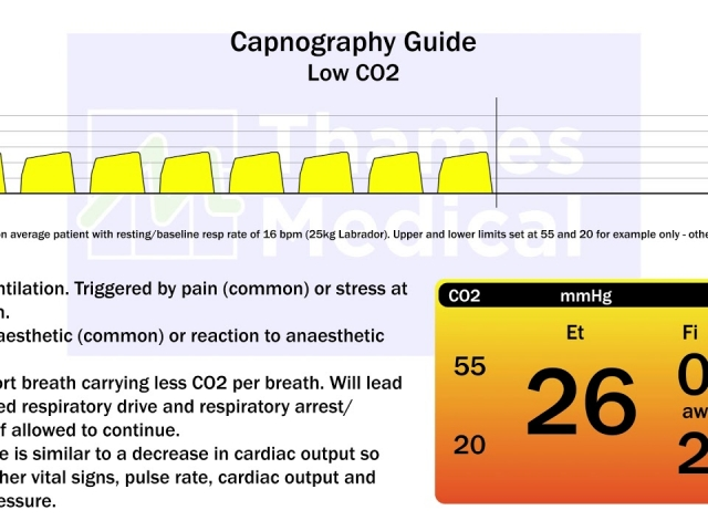 maxresdefault 11 1 1 640x480 c - The Capnography Resource Centre