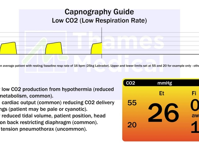 maxresdefault 13 1 1 640x480 c - The Capnography Resource Centre