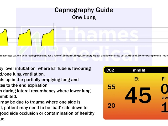 maxresdefault 15 1 1 640x480 c - The Capnography Resource Centre