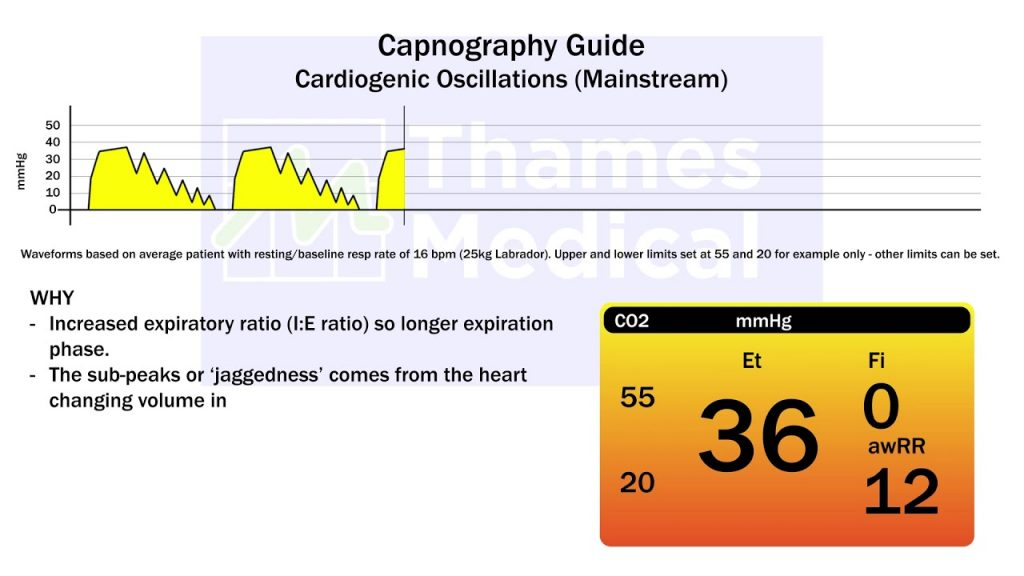 maxresdefault 19 1 1 1024x576 - The Capnography Resource Centre