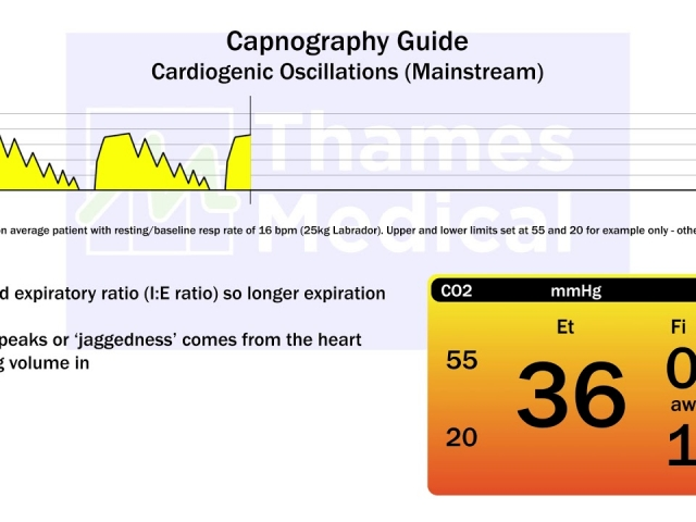 maxresdefault 19 1 1 640x480 c - The Capnography Resource Centre