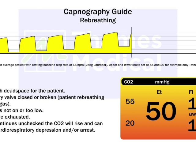 maxresdefault 21 1 1 640x480 c - The Capnography Resource Centre