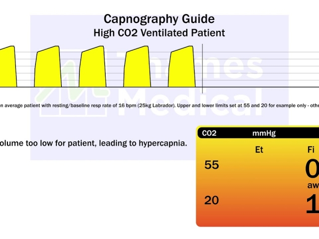 maxresdefault 22 1 640x480 c - The Capnography Resource Centre