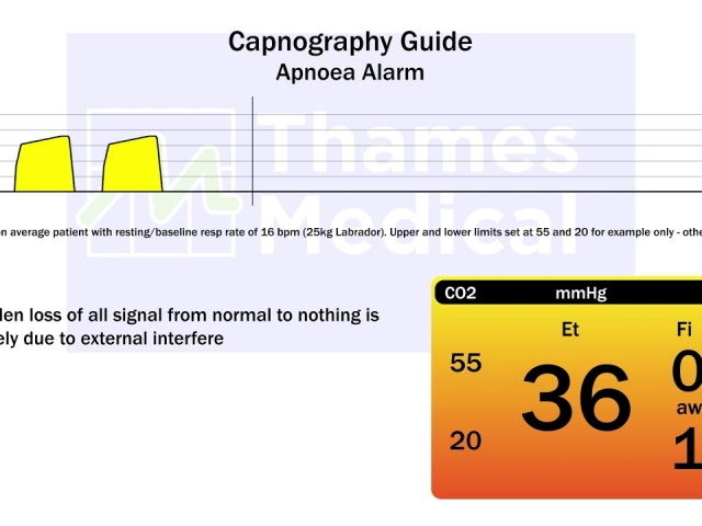 maxresdefault 24 1 640x480 c - The Capnography Resource Centre