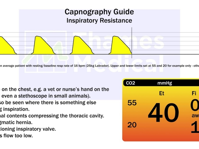 maxresdefault 26 1 640x480 c - The Capnography Resource Centre