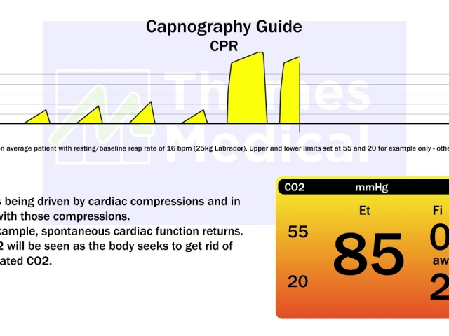 maxresdefault 27 1 640x480 c - The Capnography Resource Centre
