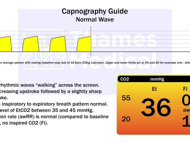 maxresdefault 9 1 1 640x480 c - The Capnography Resource Centre